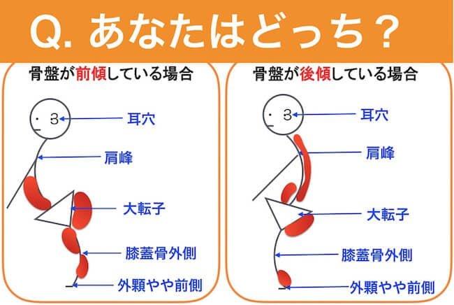 骨盤の傾きをセルフチェックする方法